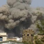 اليمن يدين مقتل مصورين صحفيين بقصف حوثي في تعز