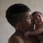 بورتوريكو تسجل أول حالة «مايكروسيفالي» مرتبطة بفيروس «زيكا»