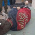 فيديو| إصابة 3 مدنيين بقصف صاروخي للقوات السورية في حلب