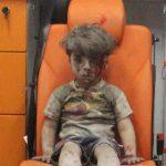 قس للتايمز: الخوذ البيضاء تركوا الطفل عمران متألما للإضرار بالأسد