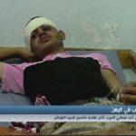 فيديو| كاميرا الغد ترصد معاناة أحد مصابي الحرب في اليمن