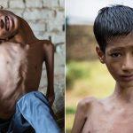 بريطانية تتبرع بتكاليف عملية لإنقاذ الطفل الهندي صاحب الرقبة