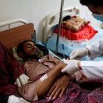 «الصحة العالمية»: حالات «الكوليرا» باليمن تجاوزت 100 ألف ووفاة 798 مصابا