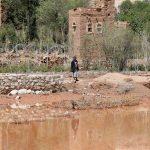 وفاة 34 وإصابة 2000 بسبب الكوليرا في اليمن