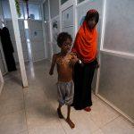 «الصحة العالمية»: مليون إصابة بالكوليرا في اليمن