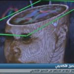 فيديو| أبحاث علمية لتطوير بنية المخ من خلال الرياضة