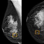 دراسة: نظام للذكاء الاصطناعي بجوجل يحسن من اكتشاف سرطان الثدي