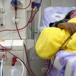 تلف كلوي في أكثر من ثلث مرضى كوفيد-19 بالمستشفيات